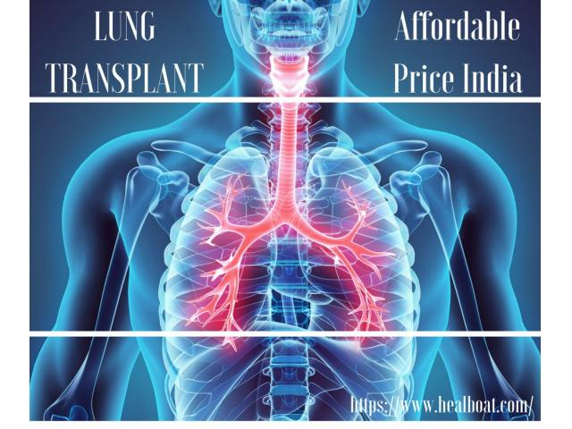 Lung Transplant India Cost @+91-8882-051-051
