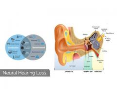 What is a Neural hearing loss!causes and its treatment