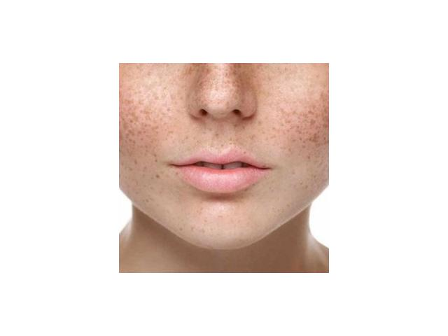 Melasma Treatment Cost And Clinic in Gurgaon | Estique Clinic